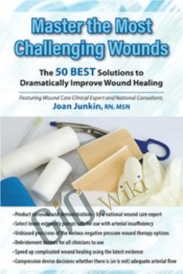 Master the Most Challenging Wounds: The 50 BEST Solutions to Dramatically Improve Wound Healing - Joan Junkin