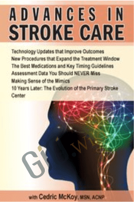 Advances in Stroke Care - Cedric McKoy